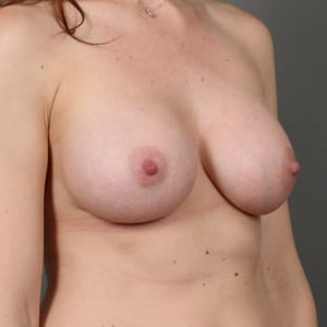 30S FEMALE DESIRING FULLER BREASTS