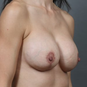 30S FEMALE WITH BREAST DEFLATION AFTER PREGNANCIES