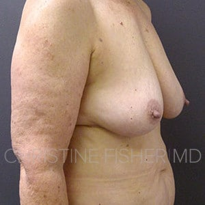 60s female with invasive breast cancer